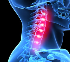 Neck Pain - treatment