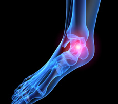 Ankle & Heel Pain - Plantar Fasciitis - treatment